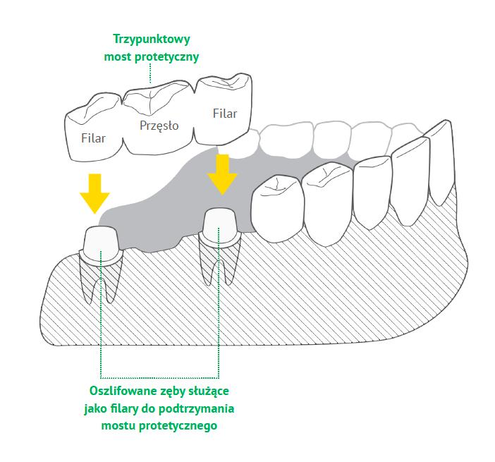 Most i korona zęba