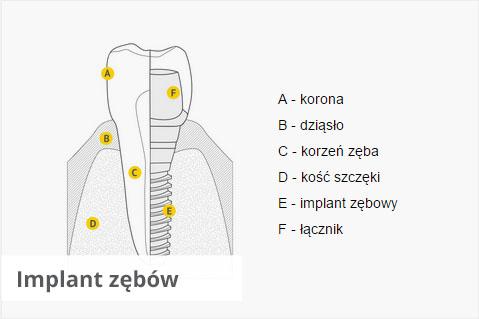 Implant zębów