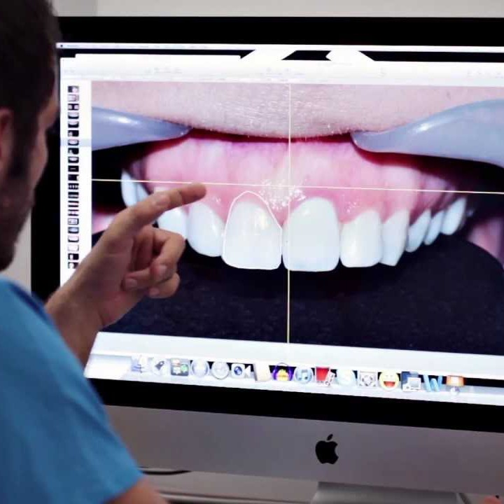 DSD - Digital Smile Design w Dentim Clinic Katowice