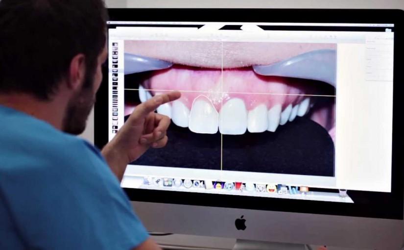 DSD Digital Smile Design w Dentim Clinic Katowice 51