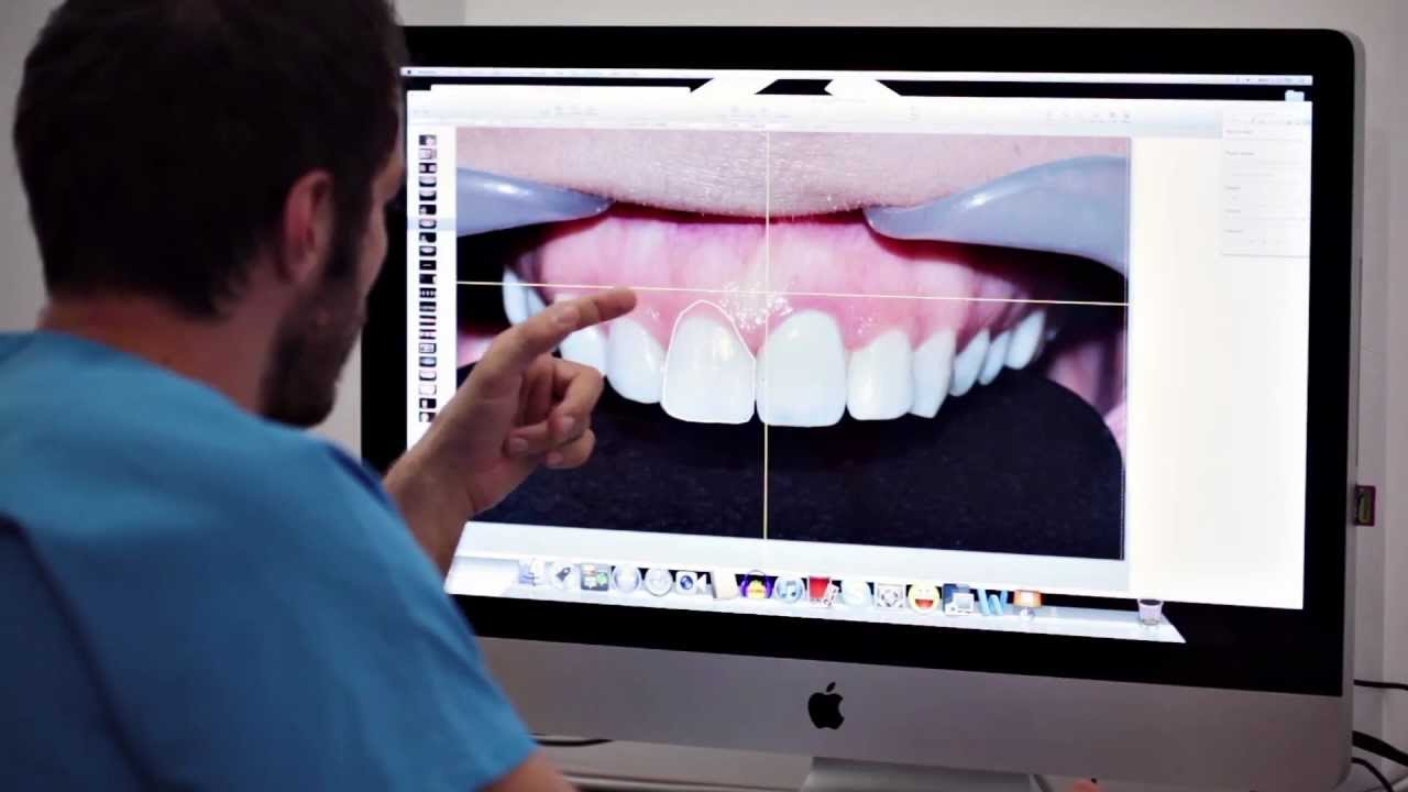 DSD Digital Smile Design w Dentim Clinic Katowice 51
