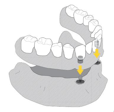 proteza zębów, proteza naimplantach