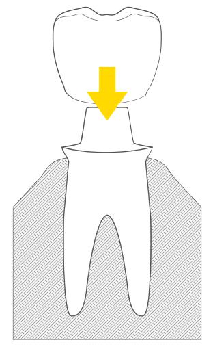 koronka zęba w dentim clinic