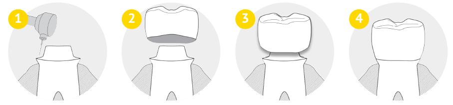 korony zębów - proces wykonania