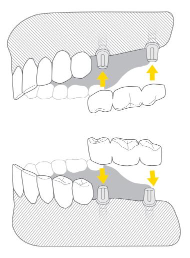most na implantach zębowych