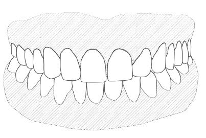 proteza zębów całkowita akrylowa