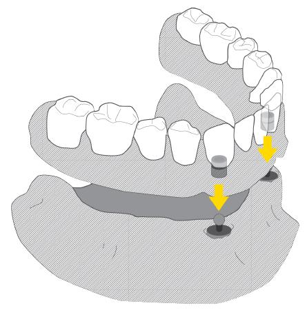 protezy zębowe na 2 implantach