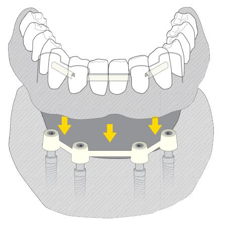protezy zębowe na4 implantach