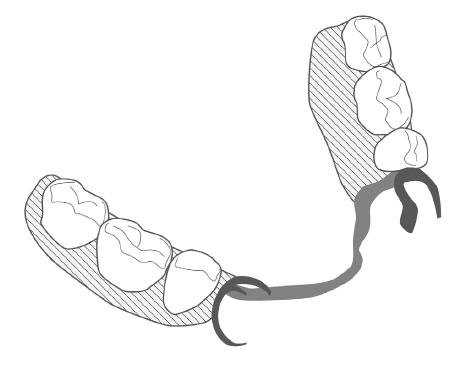 proteza częściowa, proteza szkieletowa