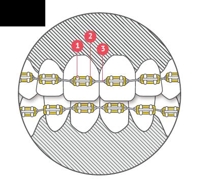 aparat ortodontyczny, budowa aparatu, ligatura, zamek,  łuk aparatu