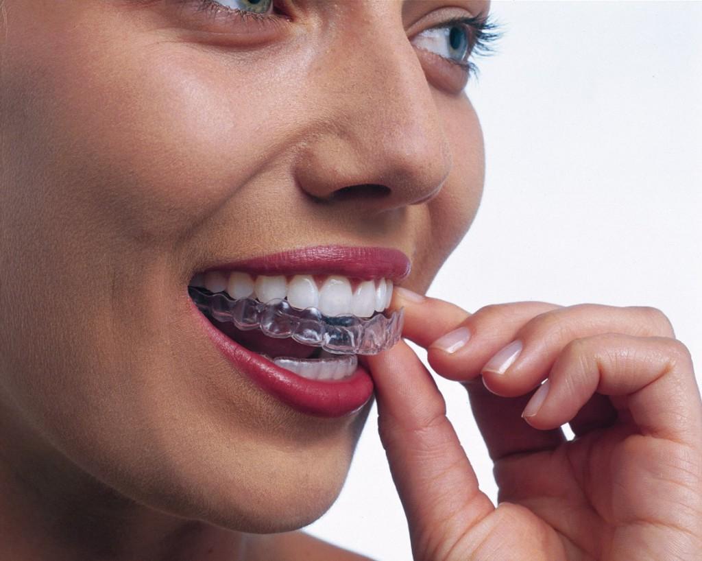 invisalign, niewidoczny aparat na zęby