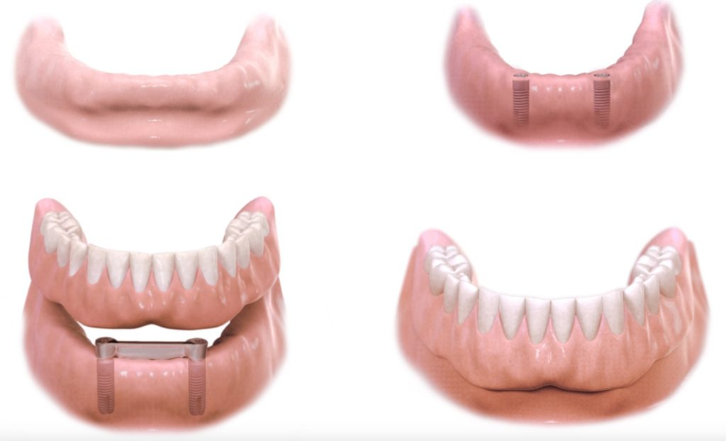 brak jednego zeba, brak pojedynczego zeba, implant, korona na implancie, dentim clinic katowice