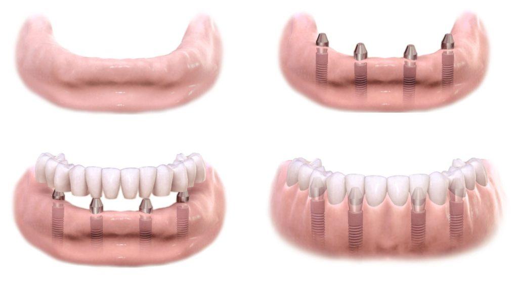 brak jednego zeba, brak pojedynczego zeba, implant, korona naimplancie, dentim clinic katowice