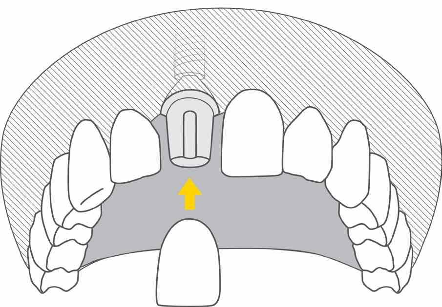 implant z koroną - ilustracja
