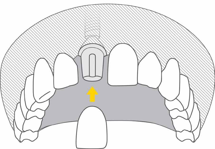 implant zkoroną - ilustracja