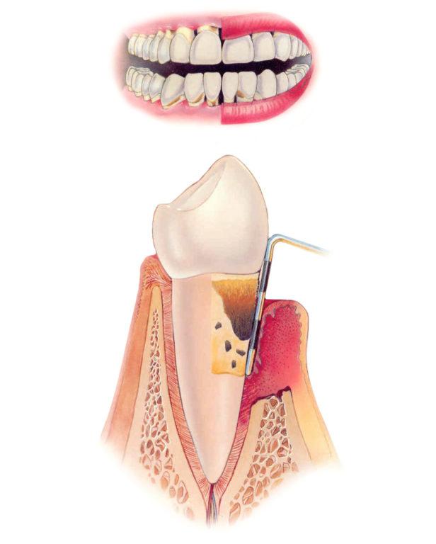 leczenie chorob przyzebia, dentim clinic katowice
