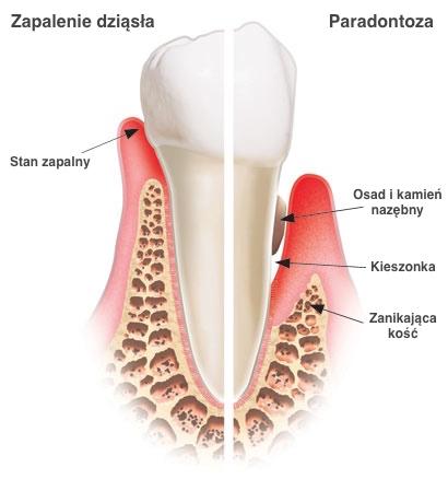 paradontoza, zapalenie dziasel, choroby dziasel, choroby przyzebia, periodontolog