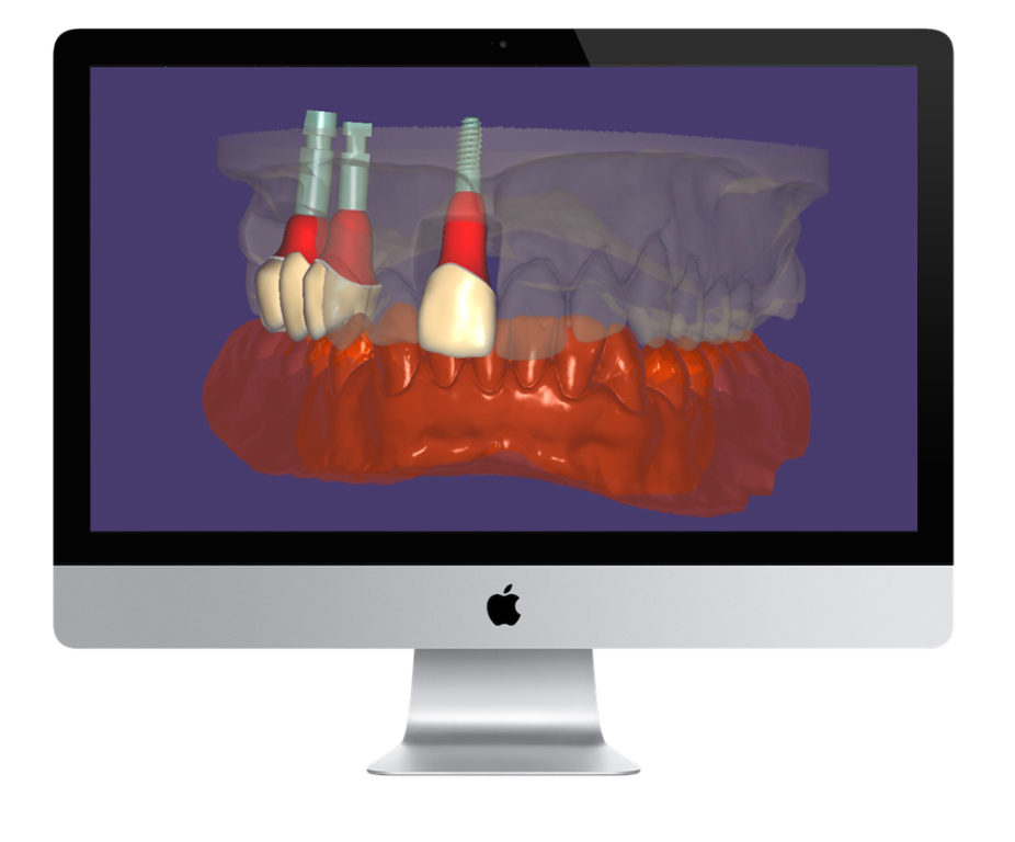 planowanie leczenia implanty katowice, planowanie 3D, CAD-CAM implanty, dentim clinic