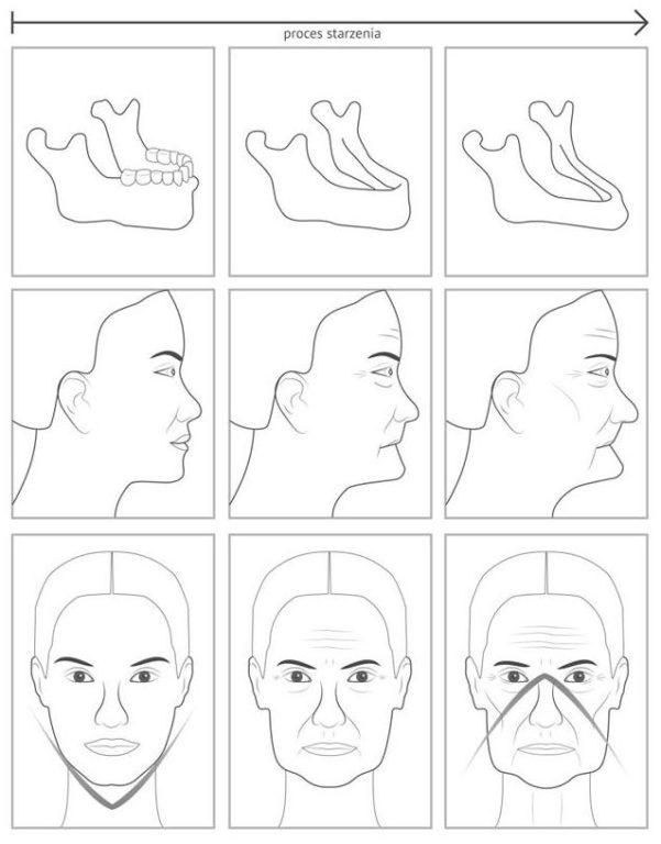 zanik kosci iwplyw narysy twarzy, dentim clinic katowice