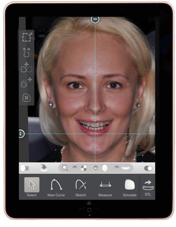 komputerowe projektowanie usmiechu, zęby projektowanie 3D, dentim  clinic katowice