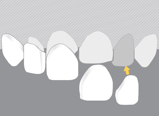 Dentim Clinic ilustracja licówek