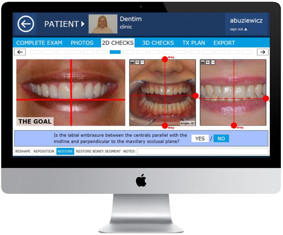 planowanie leczenia zębów w dentim clinic katowice, dawsan academy, dawson wizard