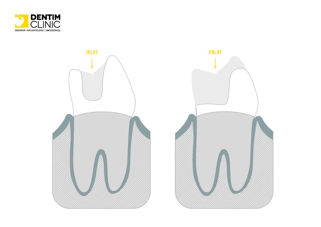 wypelnienia Inlay Onlay w Dentim Clinic
