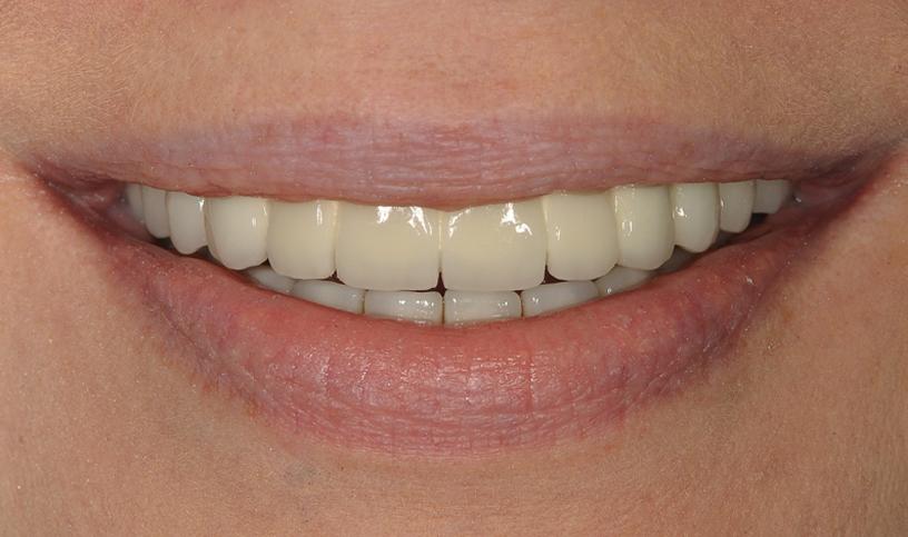 implanty po1