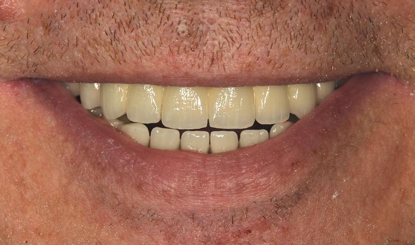 implanty po3
