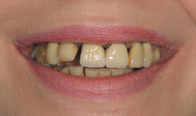 implanty przed1