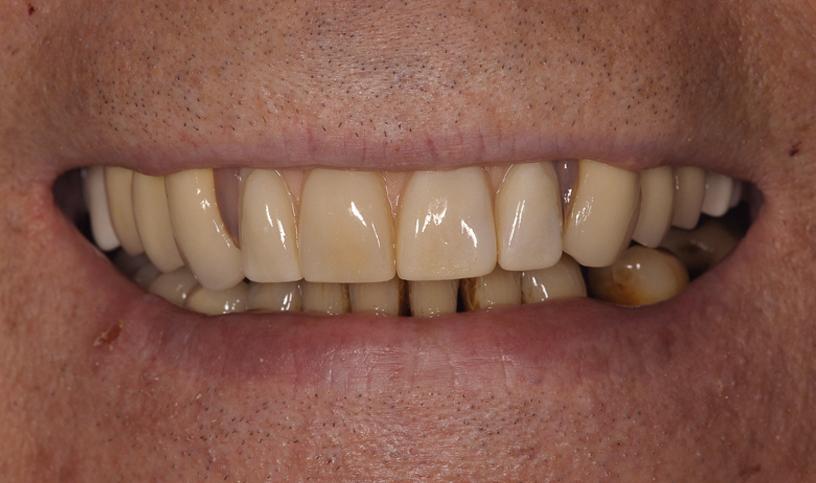 implanty przed5