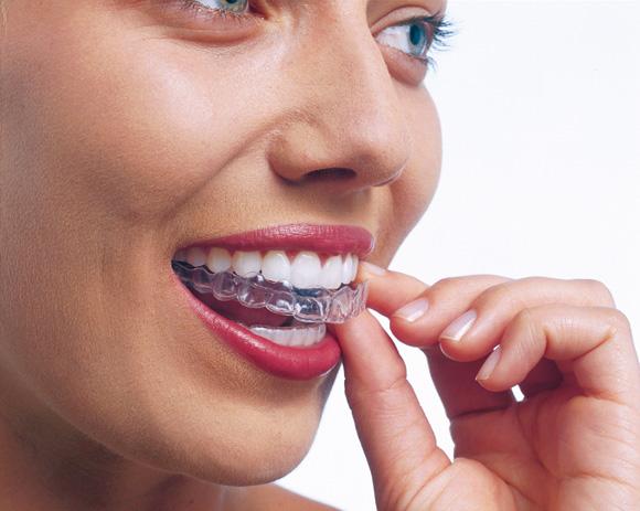 Invisalign – rewolucja w prostowaniu zębów, bez bólu i dyskomfortu.