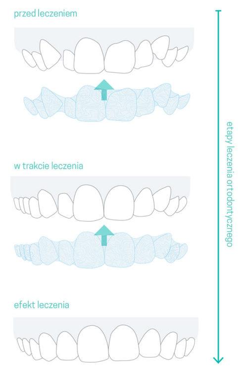 Na czym polega metoda leczenia zębów metodą Invisalign