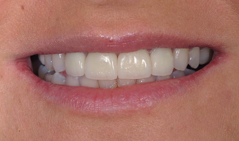 stomatologia estetyczna po 1