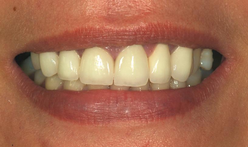 stomatologia estetyczna po2
