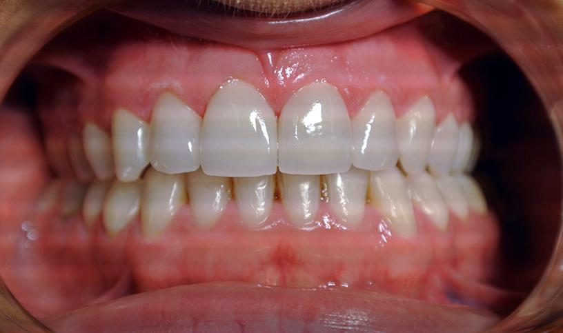 stomatologia estetyczna po3