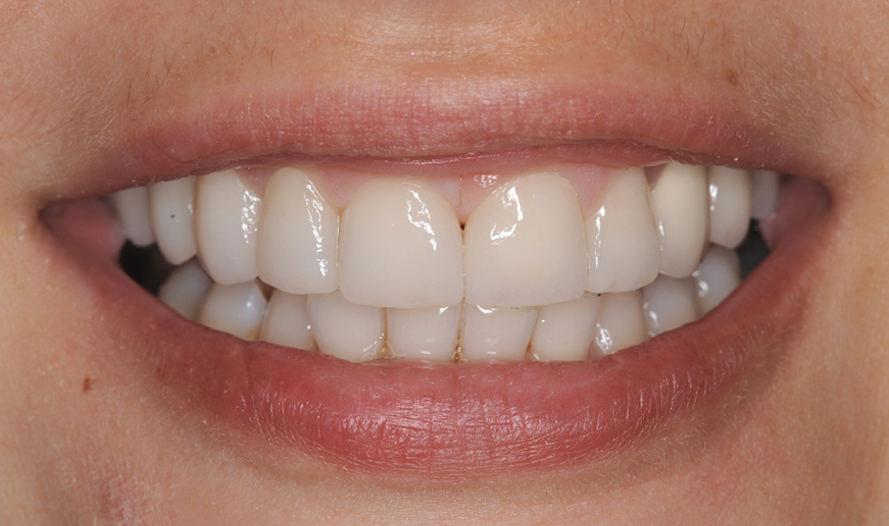 stomatologia estetyczna po4