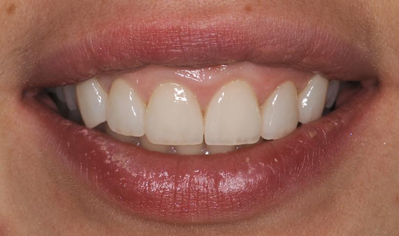 stomatologia estetyczna po5