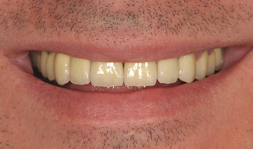 stomatologia estetyczna po 6