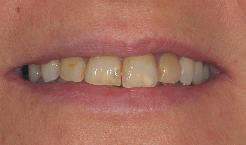 stomatologia estetyczna przed 1