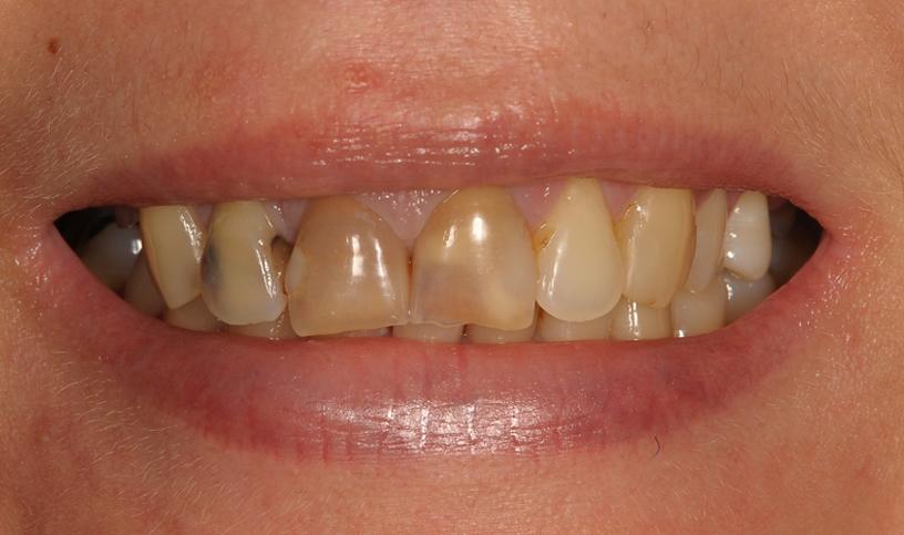 stomatologia estetyczna przed2