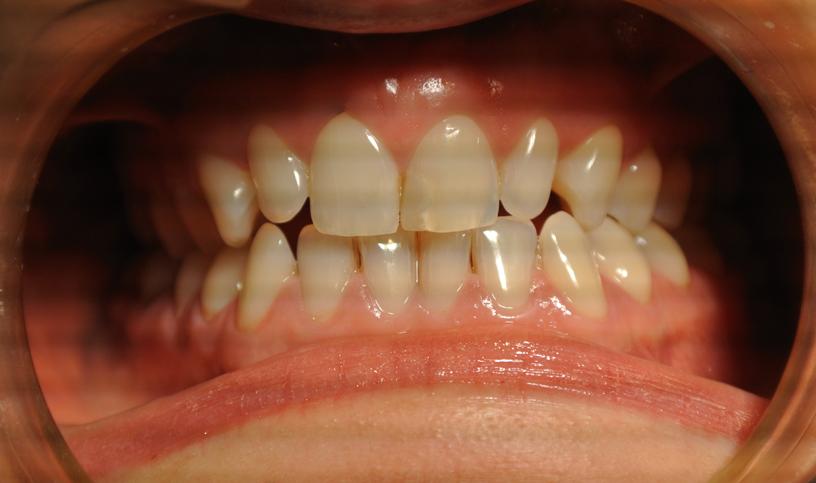stomatologia estetyczna przed3
