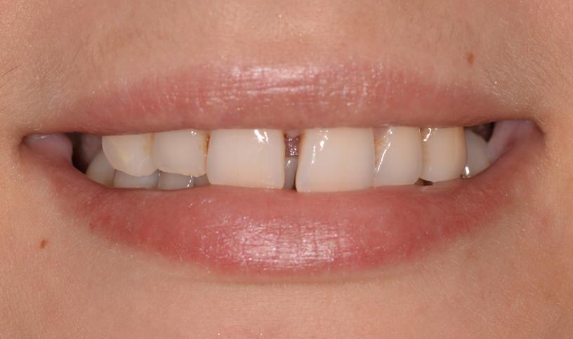 stomatologia estetyczna przed4