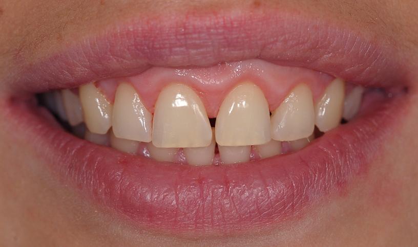 stomatologia estetyczna przed 5