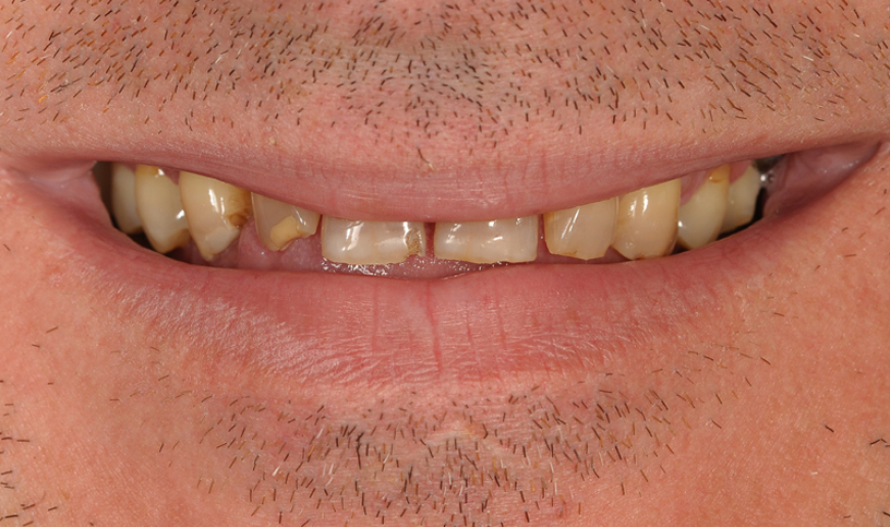 stomatologia estetyczna przed6