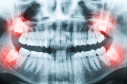 Wyrywanie ósemek. Wszystko co musisz wiedzieć ochirurgicznym usuwaniu zębów mądrości.