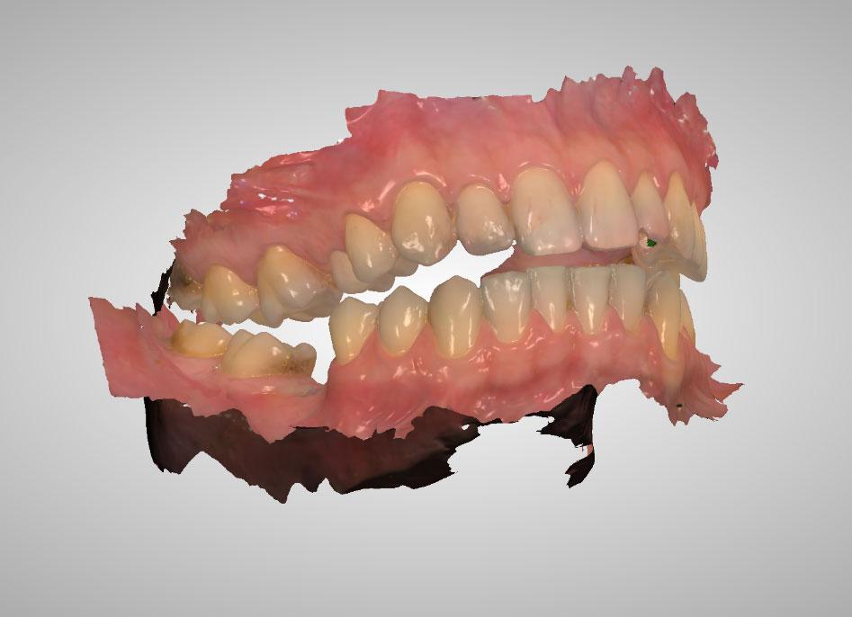 Skaner wewnatrzustny w Dentim Clinic 2
