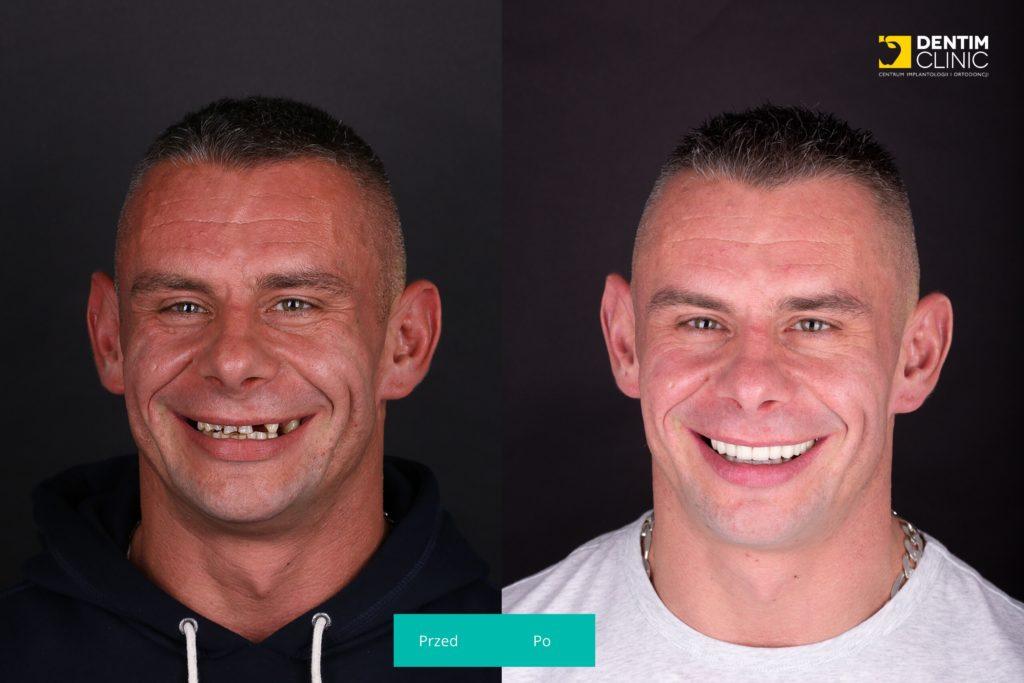 Dentim przed i po Pan Grzegorz